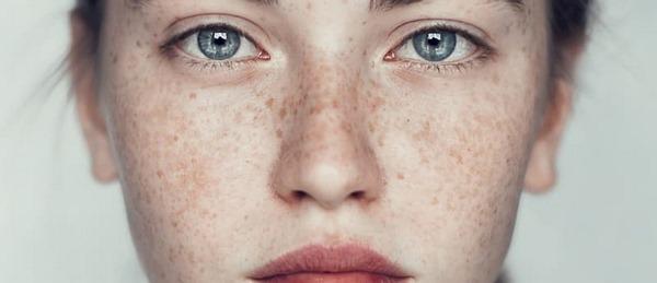 tàn nhang di truyền có chữa được không