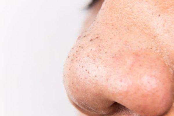 cách trị mụn đầu đen ở mũi tại nhà