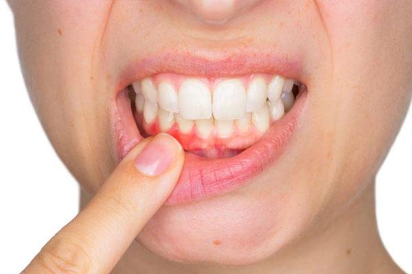 cách sử dụng miếng dán trắng răng